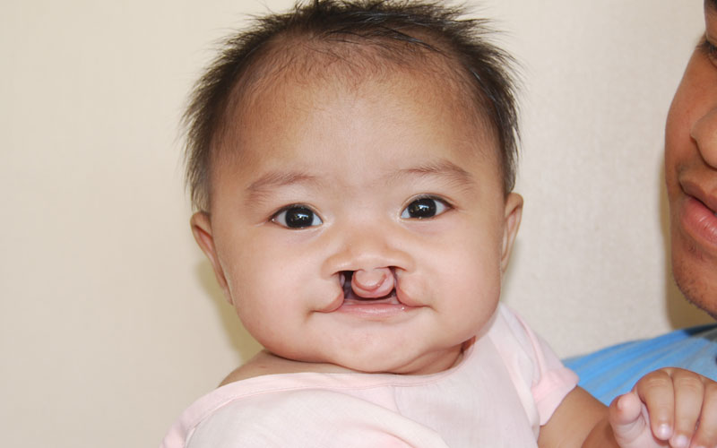 Bilateral cleft lip and palate